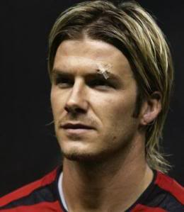 Beckham with the cut above his eye from a boot kicked by Ferguson